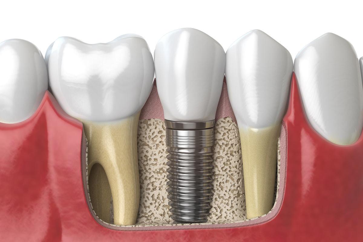 Modell von Zahnimplantaten
