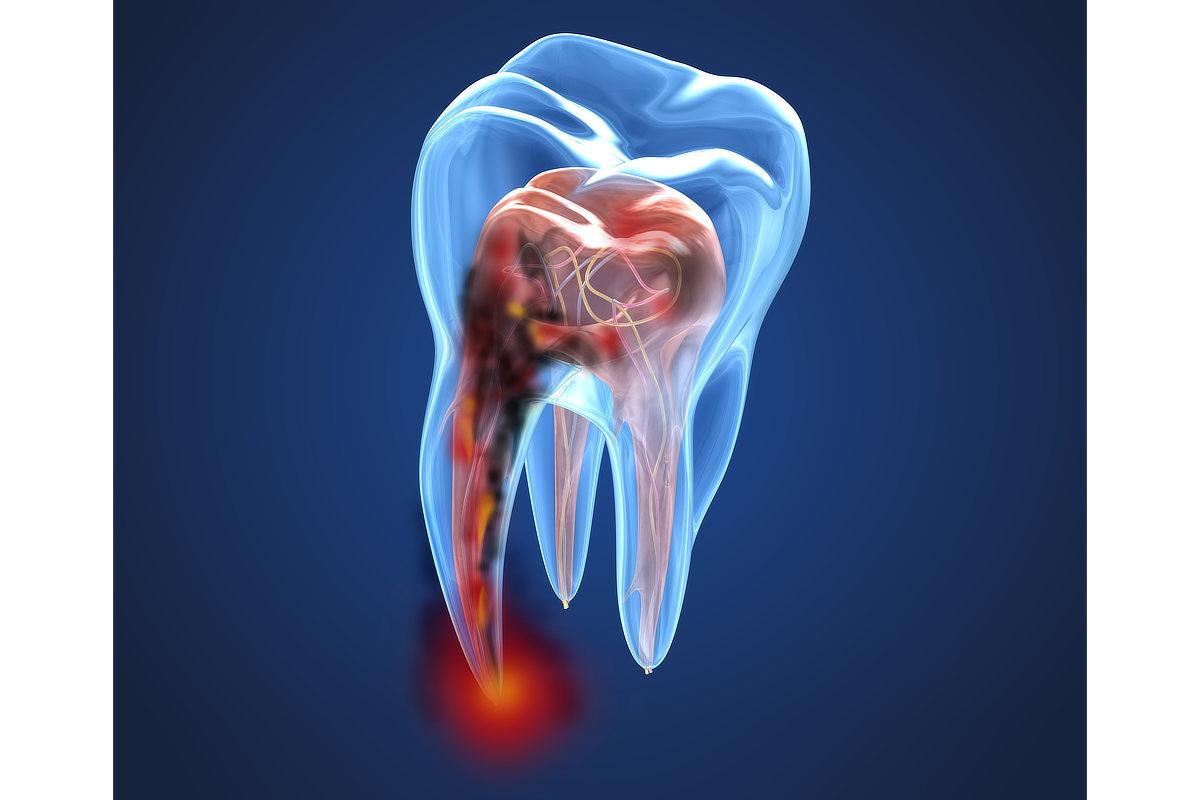 Graphic mit durchsichtigen Zahn